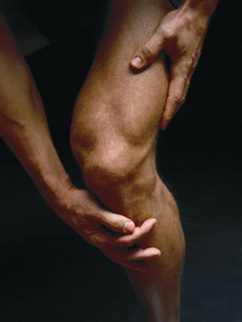 Почему возникает артрит?